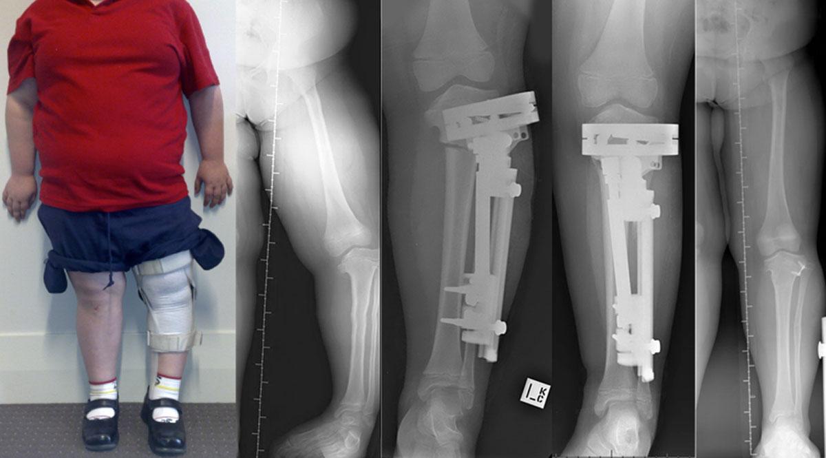 Mackie Orthopaedics Bone Deformity Correction