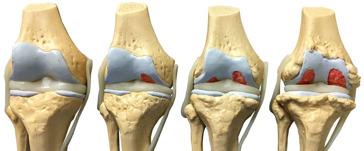 Mackie Orthopaedics