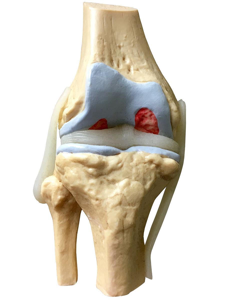 Mackie Orthopaedics Knee Replacement